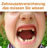 gratis Ebook Zahnzusatzversicherung